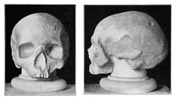 Fotografier föreställande en gipskopia av Swedenborgs påstådda skalle sedd från två håll.